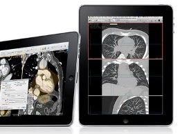 Apple đăng kí bản quyền công nghệ 5D