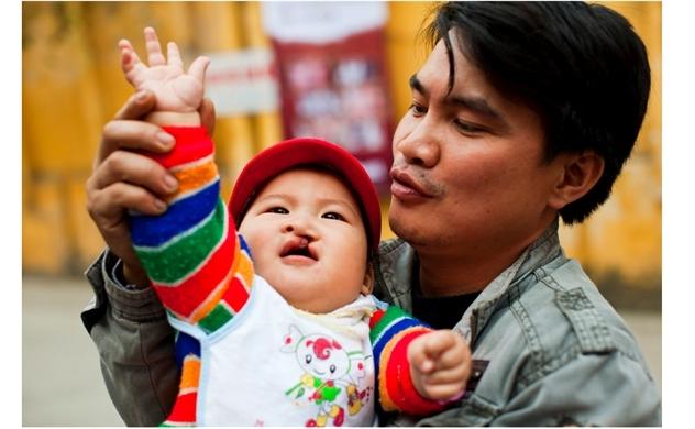 AQUA Việt Nam đồng hành cùng Operation Smile Việt Nam phẫu thuật miễn phí cho trẻ em dị tật hàm mặt